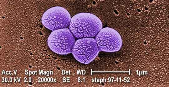 Staphylococcus bacteria up close