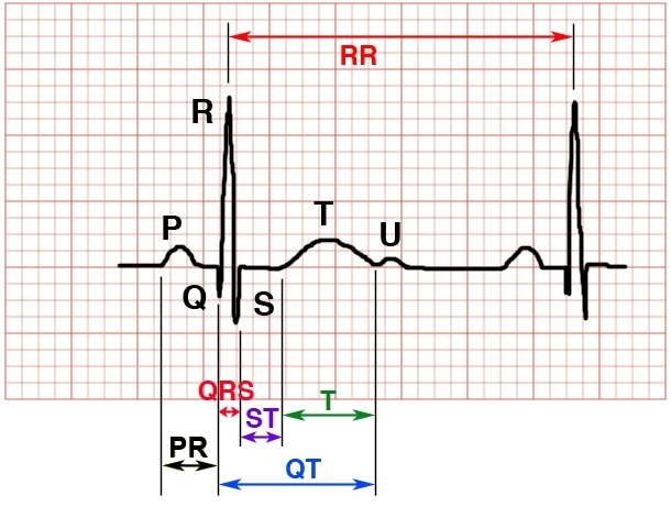How to Read an EKG Strip - RnCeuscom