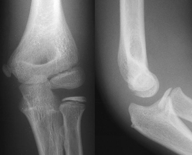 lateral radiographs of the elbow are obtained view elbow radiographsXray Elbow