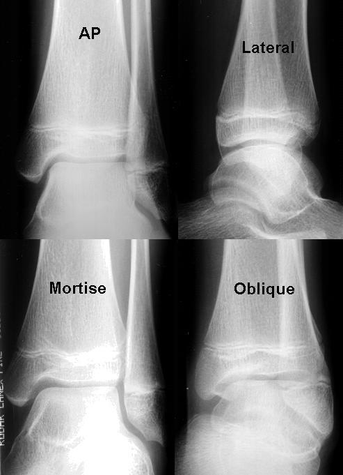 Radiology In Ped Emerg Med, Vol 3, Case 3