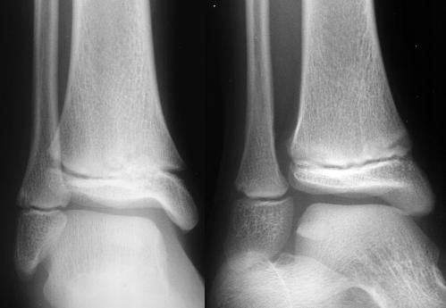 lateral malleolus swelling - photo #18