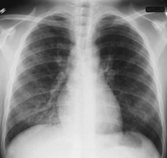 Chest x-ray from admission with loculated left pleural effusion and