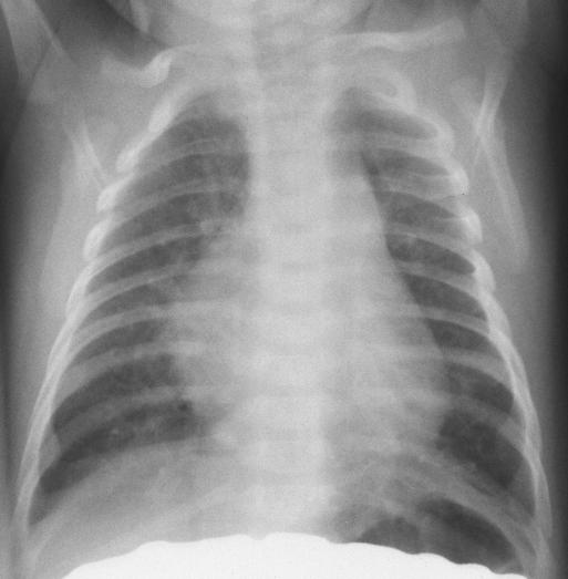 ... the right costal margin a chest x ray is obtained view cxr ap view