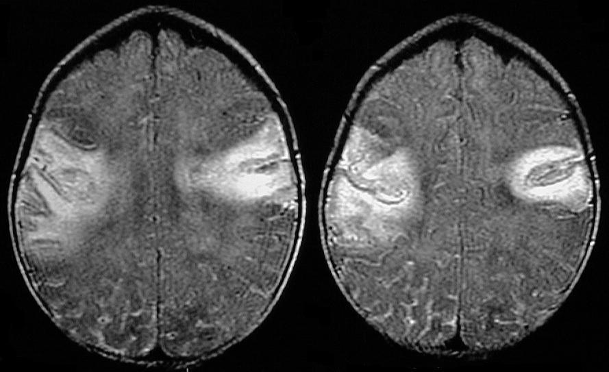 herniation of brain. in the blood-rain barrier