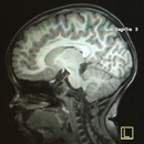 Critical regions of the brain are smaller in children from poor families