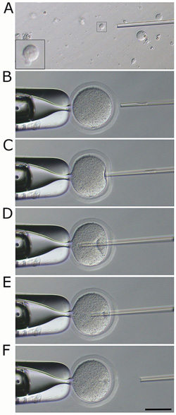 Close up of round spermatid injection sequence