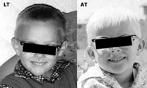 Figure 1. The portraits of twins, LT and AT, as young children reared  apart. These photos were provided by LT on December 20, 2012 with  permission to ...
