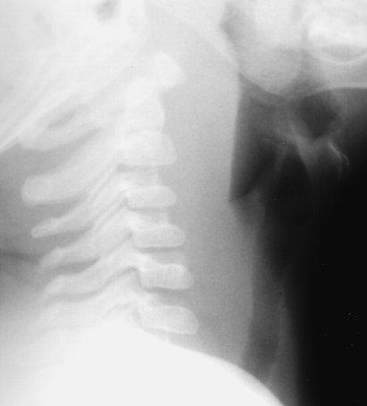 radiology in ped emerg med vol 1 case 10
