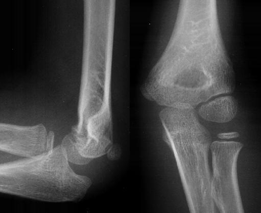 Radiology In Ped Emerg Med, Vol 1, Case 12