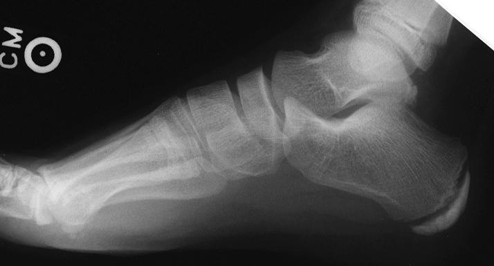 Radiology In Ped Emerg Med Vol 1 Case 20