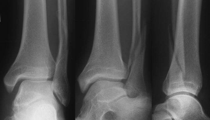 Radiology In Ped Emerg Med, Vol 3, Case 5
