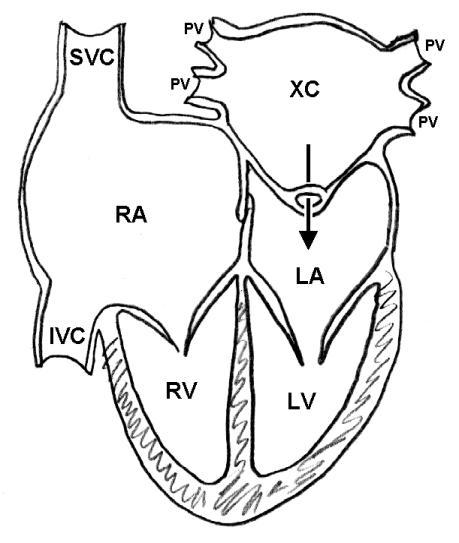 radiology in ped emerg med  vol 4  case 3