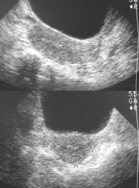 Radiology In Ped Emerg Med Vol 4 Case 8
