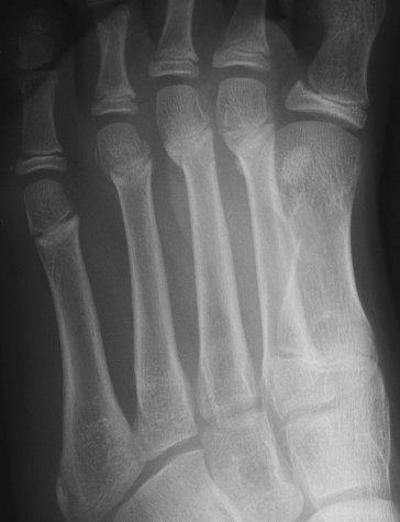Radiology In Ped Emerg Med Vol 4 Case 14