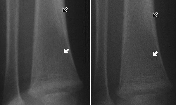Radiology In Ped Emerg Med, Vol 4, Case 18