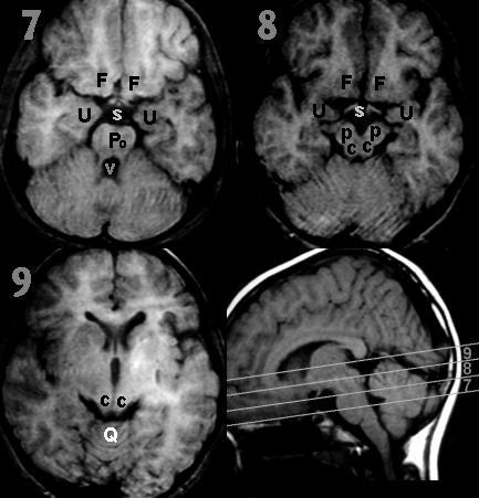 Radiology In Ped Emerg Med Vol 5 Case 6