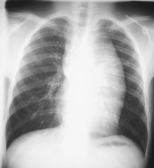 Radiology In Ped Emerg Med, Vol 7, Case 12