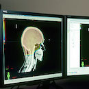 Progress in brain cancer research kicks off UH cancer lecture series