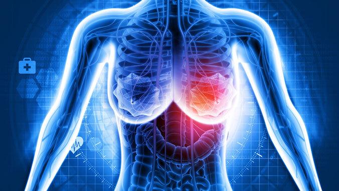 $3M to reduce biopsies, improve breast cancer screening